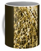 Sem Of Human Shin Bone Coffee Mug by Science Source