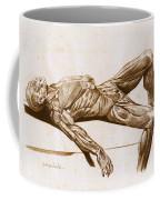A Flayed Cadaver Coffee Mug