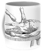 A Handbook Of Morbid Anatomy Coffee Mug