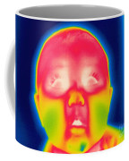 A Thermogram Of A 5 Month Old Baby Coffee Mug