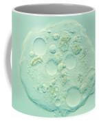 Amoeba Verrucosa Coffee Mug