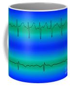 Atrial Fibrillation & Normal Heart Beat Coffee Mug
