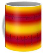 Atrial Flutter & Atrial Fibrillation Coffee Mug