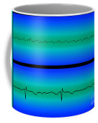 Atrial Flutter & Normal Heart Beat Coffee Mug