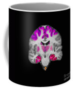 Brain Areas Affected By Alzheimers Coffee Mug