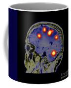Brain Tumors Coffee Mug