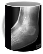 Broken Ankle Coffee Mug