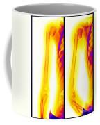 Broken Humerus Coffee Mug