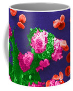 Cancer Cell Death, Sem 3 Of 6 Coffee Mug
