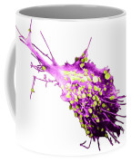 Cancer Cell Coffee Mug