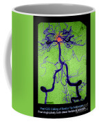 Cerebral Angiogram Coffee Mug