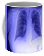 Chest X-ray Coffee Mug