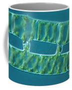Conjugation In Algae, 2 Of 4 Coffee Mug