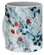 Cryptosporidium Oocysts Lm Coffee Mug by Science Source
