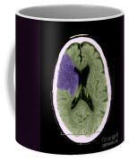 Ct Of Stroke Coffee Mug