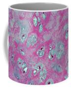 Elastic Fibrocartilage Coffee Mug