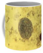Entamoeba Histolytica Lm Coffee Mug