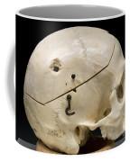 Gunshot Trauma To Skull, 1950s Coffee Mug