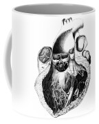 Heart Anatomy, Carl Von Rokitansky, 1875 Coffee Mug