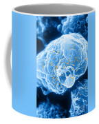 Hiv-1 Infected T4 Lymphocyte Sem Coffee Mug by Science Source