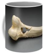 Human Distal Femur, Gunshot Wound, 1984 Coffee Mug