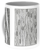 Illustration Of Muscle Types Coffee Mug