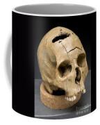 Keyhole Gunshot Trauma, 1860s Coffee Mug by Science Source