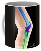 Knee Replacement X-ray Coffee Mug