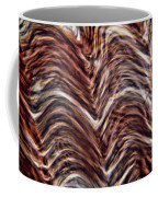 Light Micrograph Of Smooth Muscle Tissue Coffee Mug