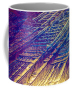 Light Micrograph Of Zalcitabine Ddc Coffee Mug