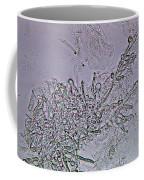 Lm Of Candida Albicans Coffee Mug