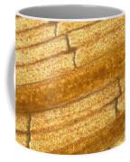 Micrograph Of A Goldfish Tail Coffee Mug