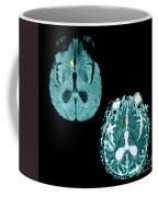 Mri Of Stroke Coffee Mug