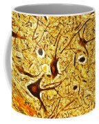 Nerve Tissue Coffee Mug