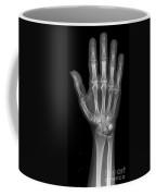 Normal Hand Coffee Mug