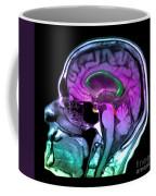 Normal Pressure Hydrocephalus Coffee Mug
