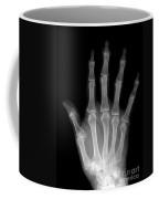 Osteoporosis And Degenerative Arthritis Coffee Mug