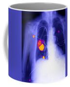 Pacemaker Coffee Mug