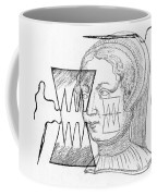 Par� Suture, 1500s Coffee Mug by Science Source