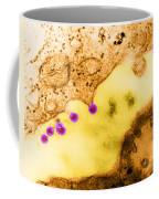 Rubella Virus German Measles, Tem Coffee Mug by Science Source