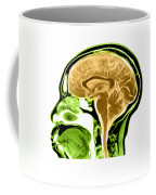 Sagittal View Of An Mri Of The Brain Coffee Mug