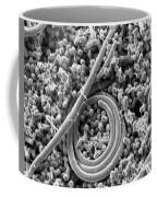 Salmonella Enteritidis Coffee Mug