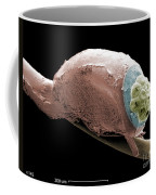 Sem Of A Head Lice Eggs Coffee Mug by Ted Kinsman