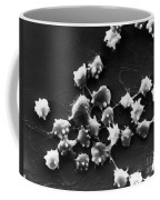 Sem Of Blood Cells In Sheep With Kidney Coffee Mug by Science Source