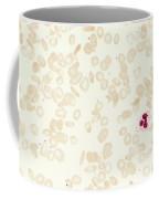Sickle Cell Anemia Coffee Mug