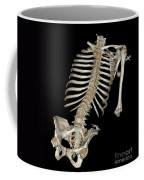 Skeletal Reconstruction Coffee Mug