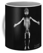 Skeleton Of A Baby Coffee Mug