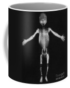Skeleton Of A Baby Coffee Mug