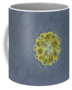 Synura Algae, Lm Coffee Mug