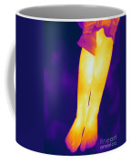 Thermogram Of A Legs Coffee Mug